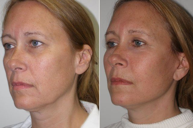 Woman showing before and after photo after undergoing Cheek Implants surgery