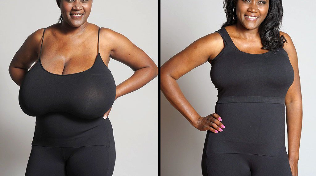 Weight loss after breast reduction surgery