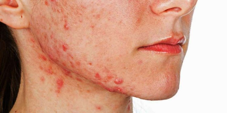 a woman who has been affected by acne