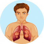 Lung Cancer Icon